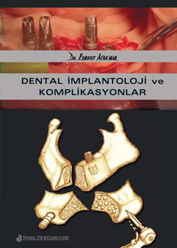 Dental-Implantoloji-ve-Komplikasyonlar